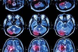 stock photo of magnetic resonance imaging  - Film MRI  - JPG