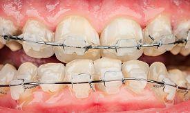 foto of overbite  - Photo braces closeup  - JPG