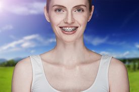 image of overbite  - Happy beautiful girl with braces on background - JPG