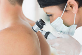 stock photo of mole  - Closeup of dermatologist examining mole on back of male patient in clinic - JPG