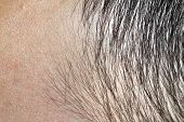 picture of hairline  - Man - JPG