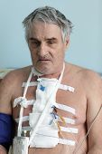 stock photo of pacemaker  - Person with pacemaker after heart surgery in a hospital ward - JPG