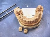 Metal Cast Pin Of Tooth On A 3d Model In Laboratory.  Sharpened  And Polished Tooth Model On Dental  poster