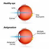 stock photo of  eyes  - Astigmatism - JPG