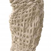 picture of osteoporosis  - Osteoporosis on white background  - JPG