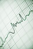 image of electrocardiogram  - Close up of an electrocardiogram in paper form - JPG