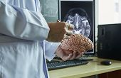 Human Brain Model On Doctor Hand. Doctor Using Pencil To Demonstrate Brain Anatomy. Background Of Mr poster