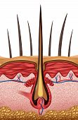 foto of dandruff  - Hair anatomy medical concept as a close up of a human follicle symbol on skin - JPG