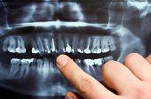 foto of cranium  - Panoramic dental X - JPG