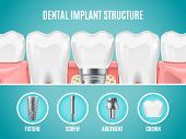 Dental Implant Structure. Vector Reallistic Tooth Implant Cut. Dental Surgery Banner. Illustration A poster
