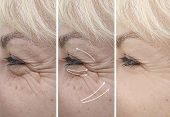 Woman Elderly Wrinkles Before And After Treatment Therapy, Contrast poster
