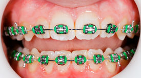 stock photo of overbite  - Closeup photo of orthodontic braces on teeth - JPG
