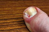 picture of scabs  - Ingrown toenail disease blood wound infection bacteria - JPG