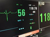 The Heart Rate Monitor Show Patients Status On Display.electrocardiogram In Hospital Surgery Operat poster