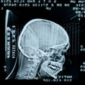 foto of mri  - Glowing and radiant MRI scan closeup photo - JPG