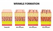 Stages Of Wrinkles At Different Ages. Anatomical Structure Of The Skin. Elastin, Hyaluronic Acid, Co poster