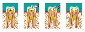 picture of anesthesia  - Dental caries dentistry intervention with drill four steps - JPG