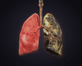 image of frontal lobe  - Healthy Lung and Smokers Lung - JPG