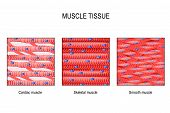 Muscle Tissue. Skeletal Muscle, Smooth (in A Gastrointestinal Tract) And Cardiac Muscle (in A Heart) poster