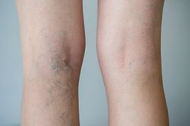 stock photo of varicose  - Varicose veins on a leg - JPG