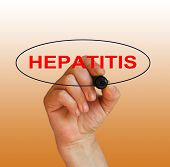 foto of hepatitis  - writing word hepatitis with marker on gradient background made in 2d software - JPG
