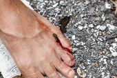 stock photo of rainforest  - tropical leech biting human foot on street beside asian rainforest - JPG