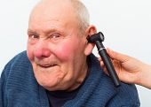 stock photo of eardrum  - Elderly patient with dementia making fun at the otolaryngology during medical examination - JPG