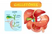 Gallstones Anatomical Cross Section Vector Illustration Diagram With Abdominal Cavity And Gallbladde poster