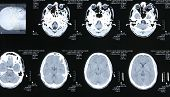 foto of magnetic resonance imaging  - Magnetic resonance images of the human body - JPG