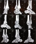 Right ankle CT