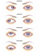 image of divergent  - medical illustration of the effects of the strabismus - JPG