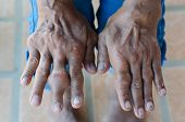image of gout  - Fingers of patients with gout - JPG