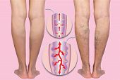 Varicose Veins On A Female Senior Legs. The Structure Of Normal And Varicose Veins. Concept Of Dry S poster