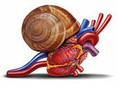 pic of cardiovascular  - Slow heart rate concept as a snail shell on human anatomy from an unhealthy body as a medical health care symbol of problems with the inner cardiovascular organ - JPG
