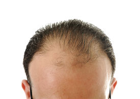 image of male pattern baldness  - Man loosing hair - JPG