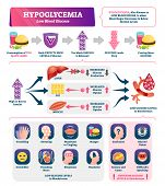 Hypoglycemia Vector Illustration. Labeled Low Sugar Level Medical Scheme. Chronic Diabetes From High poster