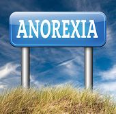 stock photo of anorexia  - anorexia nervosa eating disorder with under weight as symptoms needs prevention and treatment is caused by extreme dieting - JPG