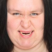picture of missing teeth  - Portrait an ugly woman with missing teeth - JPG