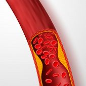 Blocked Blood Vessel, Artery With Cholesterol Thrombus. 3d Vein With Clot Vector Illustration. Medic poster