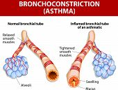 picture of respiration  - Asthma is a chronic inflammatory disease of the airways that is characterized by narrowing of the airways and dyspnea - JPG