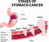 Постер, плакат: Staging of stomach cancer