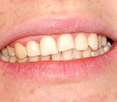 picture of gingivitis  - Curvature of the upper dentition - JPG