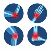 Rheumatism Or Rheumatic Disorder Medical Set. Arthritis Joint Pain Syndrome. Different Body Parts Wi poster