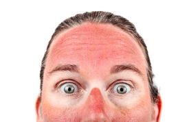 image of unsafe  - Woman with Sunglasess sunburn - JPG
