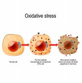 Oxidative Stress. From Normal Cell, To Oxidative Stress And Aggressive Free Radicals, Cell Death. Ve poster