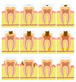 image of gingivitis  - Some illustrations of an internal structure of tooth - JPG