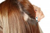 30 Year Old Caucasian Woman With Spot Alopecia, Bald Spot On Her Head poster