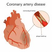 Coronary Artery Disease. Blocked Artery, Damaged Heart Muscle. Anatomy Flat Illustration. Colorful I poster