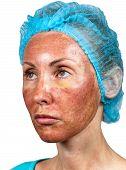 stock photo of foreshortening  - Cosmetology - JPG