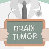 foto of tumor  - minimalistic illustration of a doctor holding a blackboard with Brain Tumor text - JPG